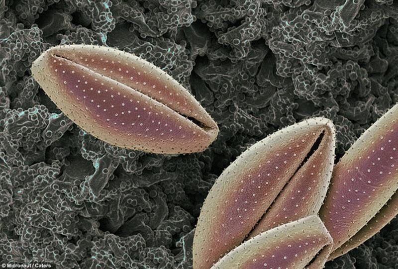 Пыльца с лилии. Аллергия на пыльцу появляется у многих людей. Клетки в носу и глазах выпускают гистамин и другие химикаты, когда контактируют с пыльцой, отчего краснеют глаза и появляется насморк. (MICRONAUT / CATERS NEWS)