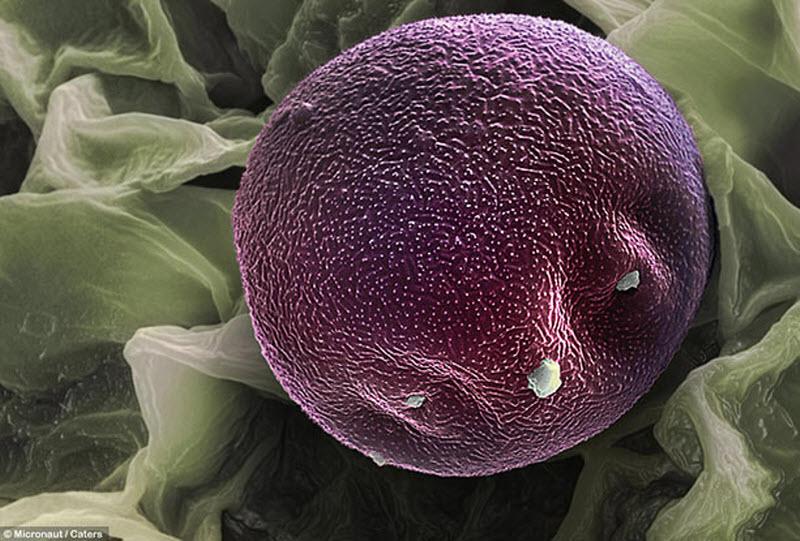 Пыльца с ольхи. (MICRONAUT / CATERS NEWS)