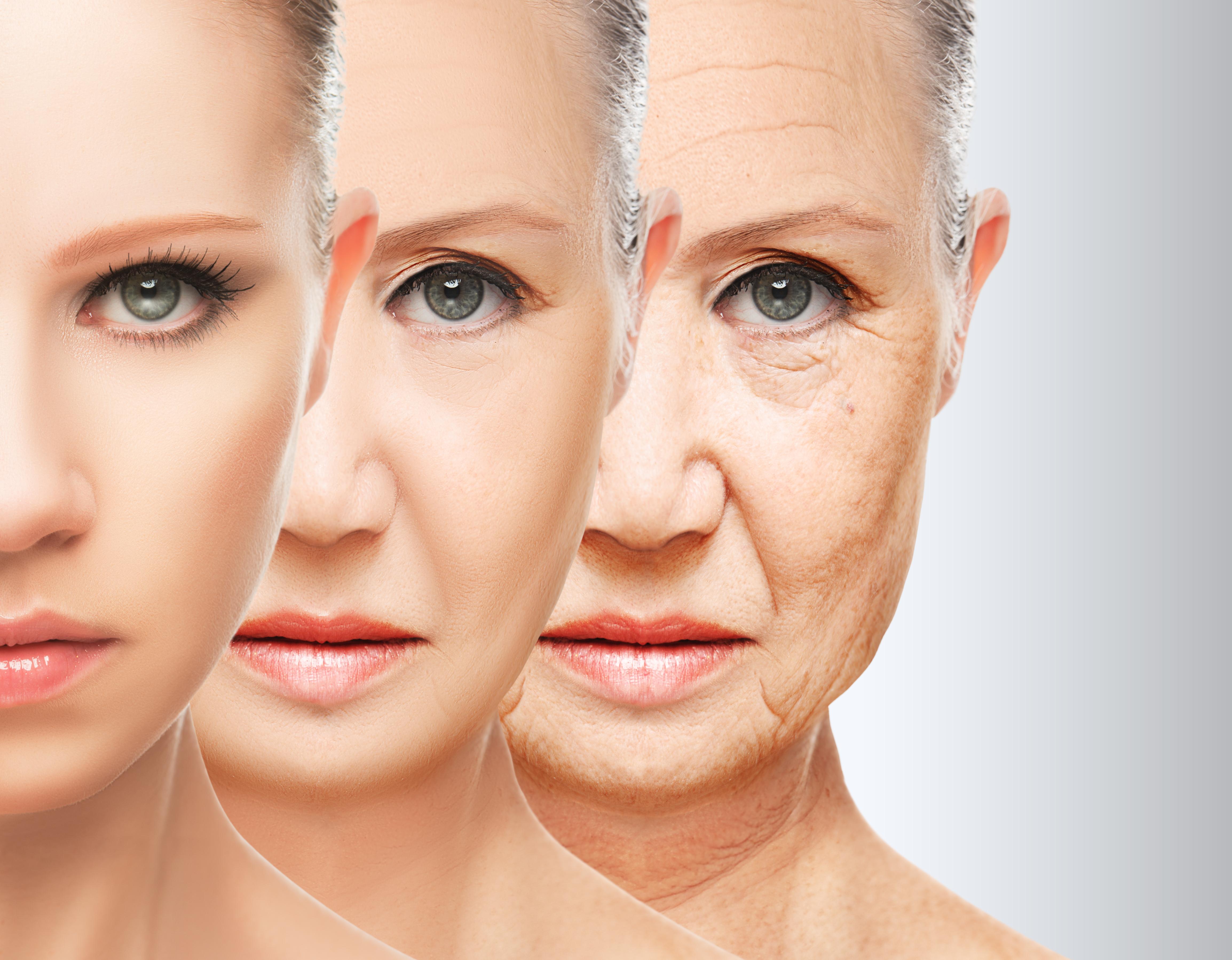 Морщины вокруг глаз: причины появления, избавление от них