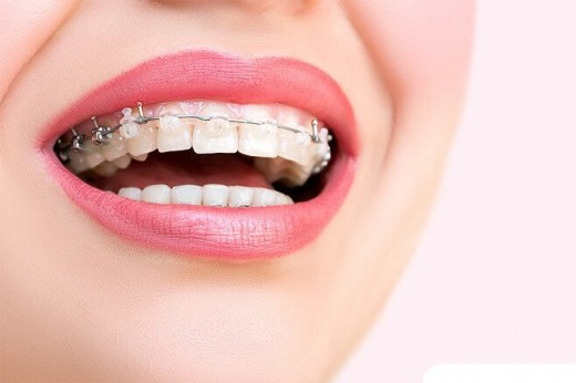 Акция: 50% снижение цен на установку брекетов в стоматологическом центре «Зууб»