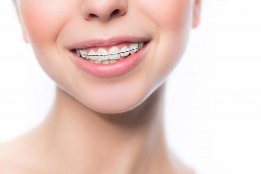 Скидкой на установку брекетов приглашает воспользоваться стоматология «Зууб»