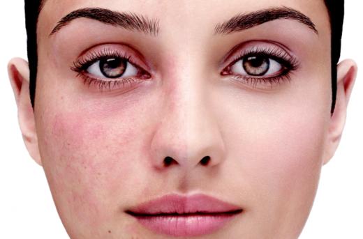 Лечение купероза: прекрасная внешность и отличное здоровье – залог успешности