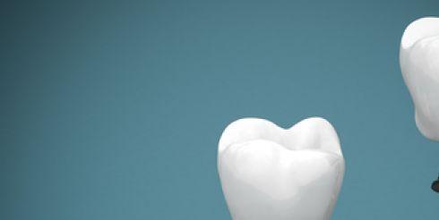 Имплантация зубов «All-on-6» – новая улыбка в клинике «32 Дент»