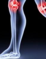 Болезнь Осгуда-Шлаттера: симптомы и лечение